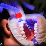Zła metoda żywienia się to większe deficyty w jamie ustnej a dodatkowo ich zgubę